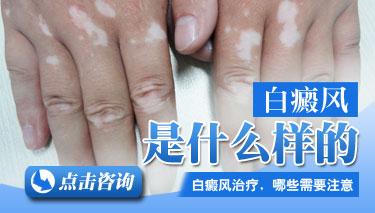 春节白癜风患者应该做哪些预防措施?